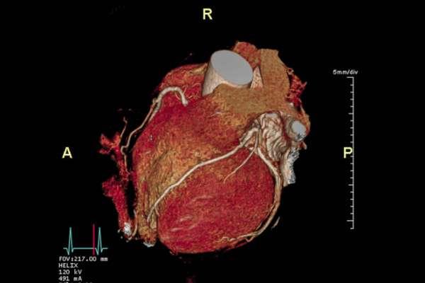 CTA coronary artery